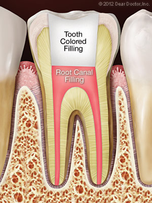 Root canal treatment with tooth-colored filling from Palmdale CA dentist