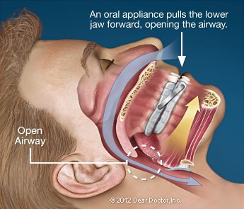 Oral sleep appliance that opens the airway