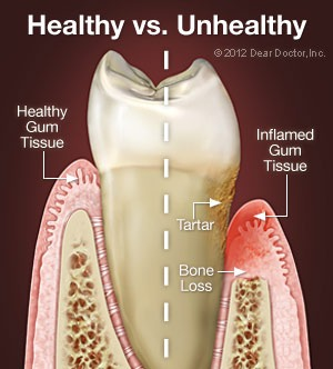 Comparison of healthy gum tissue and inflamed gum tissue