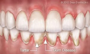 gum disease plaque and tartar buildup