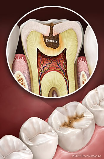 Anatomy of tooth decay