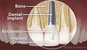 Dental Implants in Palmdale CA. Anatomy of a dental implant with an implant crown.