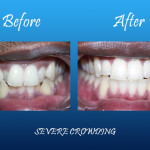 Sever crowning before and after Palmdale dentist