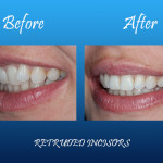 Retruded incisors before and after Palmdale, CA dentist