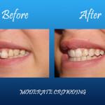 moderate crowning before and after Palmdale dentist