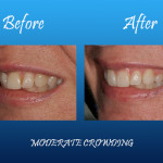 moderate crowning before and after Palmdale, CA dentist
