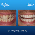 Severe crowning before and after Palmdale, CA dentist