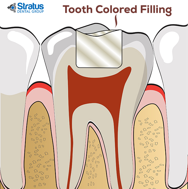 Tooth Colored Feeling