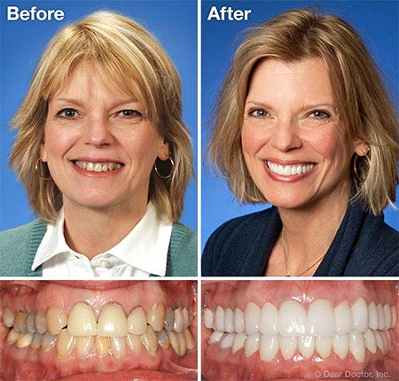 Before after photo of cosmetic dentistry in Palmdale CA