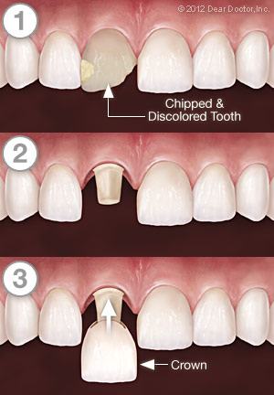 Crown series of a chipped and discolored tooth