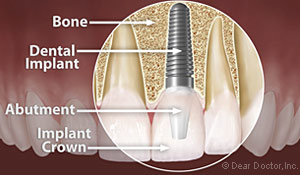 Anatomy of a dental implant with an implant crown at Palmdale CA dentist