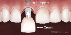 Dental implant insertion with crown at Palmdale CA dentist