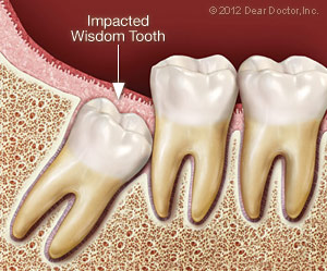 Impacted wisdom tooth needing extraction