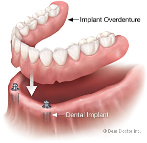 Implant overdenture supported by dental implant at Palmdale CA dentist
