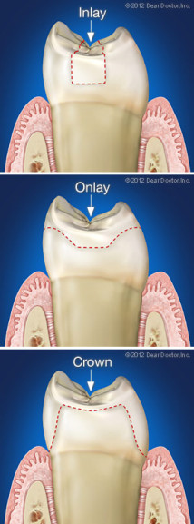 Dental inlay and onlay compared to a crown