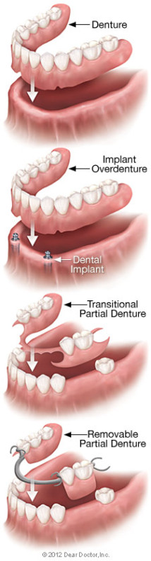 Full conventional dentures, overdentures, and partial dentures