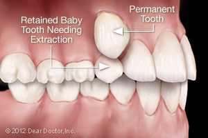 Baby tooth needing extraction alongside permanent tooth