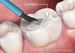 dental sealant at Palmdale CA dentist