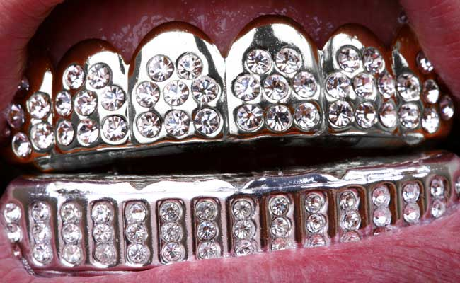 Photo of dental grillz